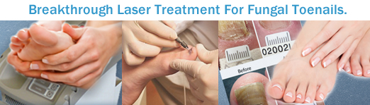 Collage of Breakthrough Laser Treatment for Fungal Toenails